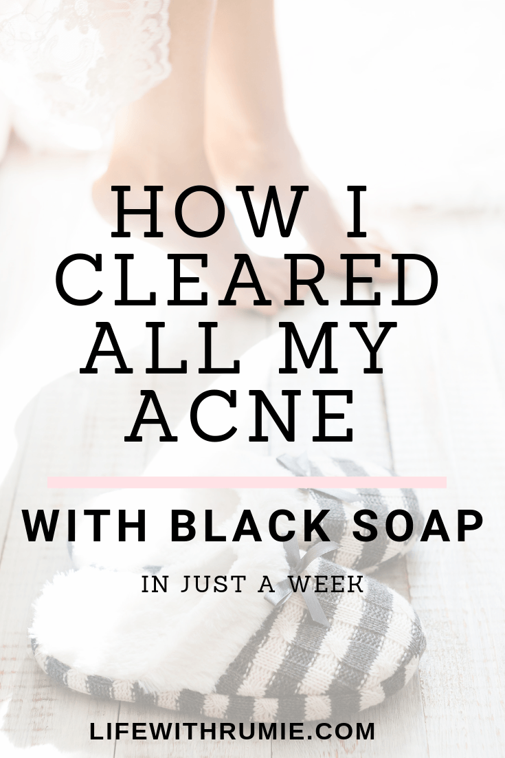 How I cleared my acne using black soap